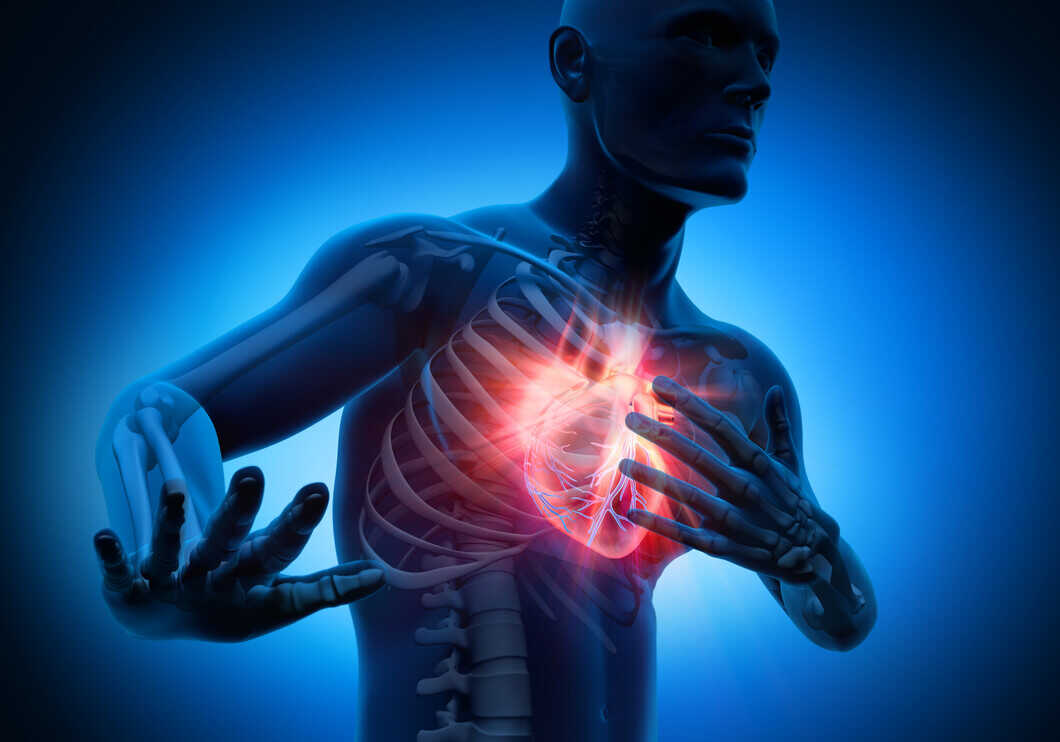 Heart Attack: Symptoms, Causes, Warning Signs & Treatment